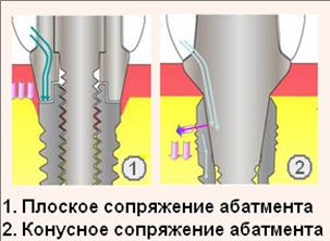 Импланты груди вред