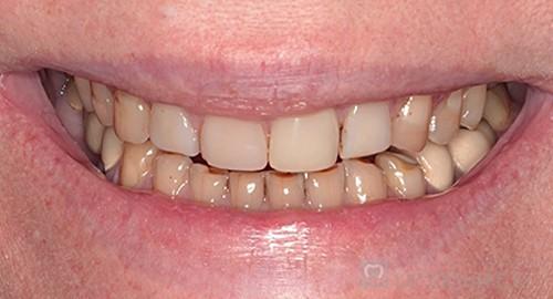 Реставрация зубов нижний новгород цены