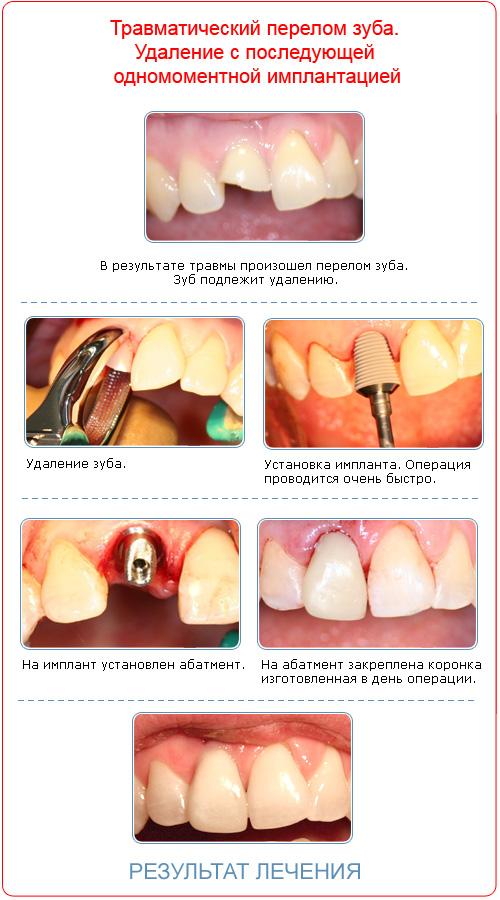 Зубной протез на все зубы отзывы