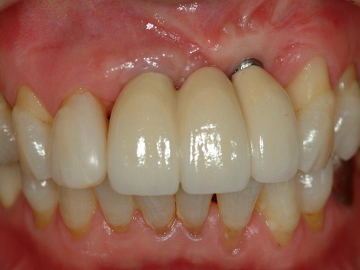 Как выбрать импланты для зубов
