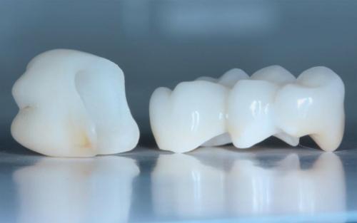 Уход за зубами из металлокерамики