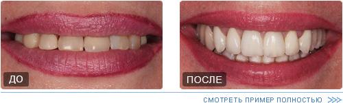 Лучшая имплантация зубов: какие методы имплантации лучше, сколько времени занимает процесс и где сделать имплантацию зубов в Москве?