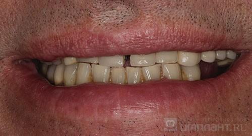 Имплантация зубов: что это такое, отзывы пациентов, этапы, как вживляют зубные импланты