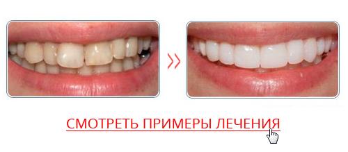 Perfect Smile Veneers реальные отзывы